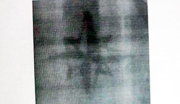 ВКыштыме ищут извращенца, напугавшего 2-х третьеклассниц